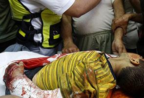 KP1M Sedang Urus Bawa 100 Kanak Kanak Gaza Untuk Rawatan di Malaysia
