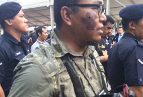 Wartawan dibaling telur ketika buat liputan kes Anwar