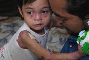 Sengsara dua beradik menghidap penyakit kulit rapuh