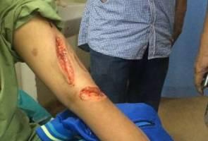 Penoreh getah cedera disondol babi hutan