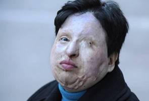 Lelaki Iran dibutakan mata sebagai hukuman curah asid ke wajah kanak-kanak
