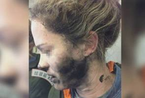 Woman's headphone batteries exploded on flight to Australia, causing burns
