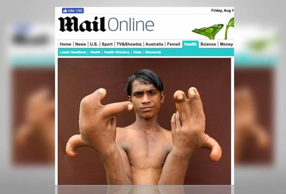 Akibat tangan membesar luar biasa, lelaki ini digelar syaitan