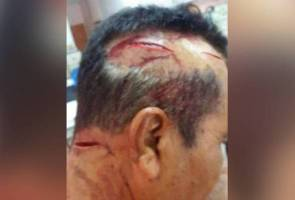 For wanting to take second wife, Kelantan man slashed by wife