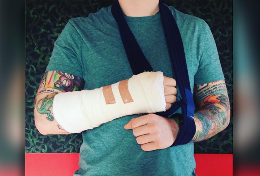 Gambar yang dimuat naik Instagram rasmi Ed Sheeran memaparkan tangannya dibalut dan memakai selempang.