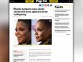 Peminat risau hidung Janet Jackson 'tenggelam'