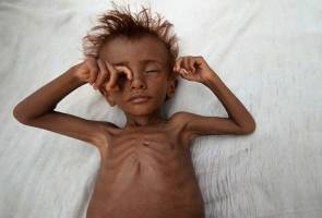 Yemen: End blockade, avert famine