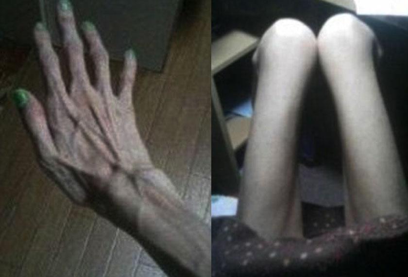 Seorang wanita Jepun mendakwa telah didera oleh datuknya 10 tahun lalu sehingga berat badannya turun mencecah 16.8kg. -Foto Dailymail.com
