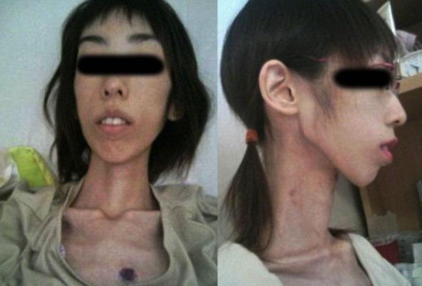 Dia turut mendedahkan gambar yang didakwanya ketika berada di hospital dan menunjukkan tanda-tanda lebam di dada dan leher. -Foto Dailymail.com