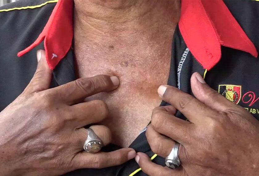 Susulan insiden itu, peluru musuh masih terpahat di tengah-tengah tulang dada warga emas tersebut. - Foto Astro AWANI
