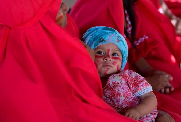 Semakin ramai kanak-kanak di seluruh dunia hadapi kekurangan zat pemakanan