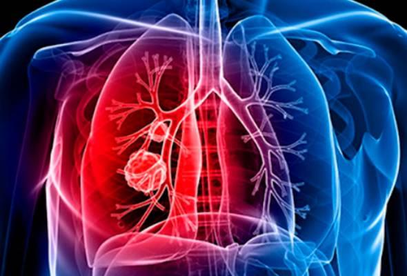 Sentiasa berwaspada 'bendera merah' kanser paru-paru