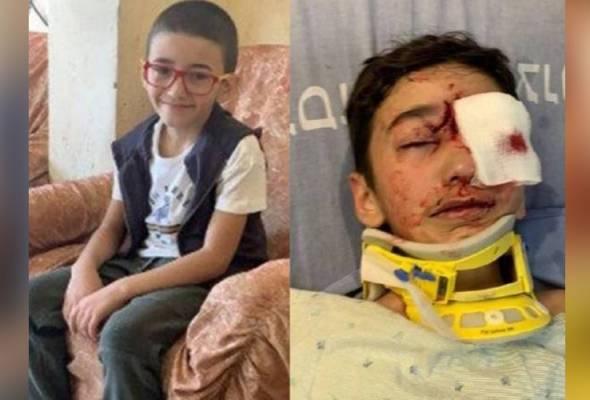 Budak 8 tahun buta ditembak tentera Zionis