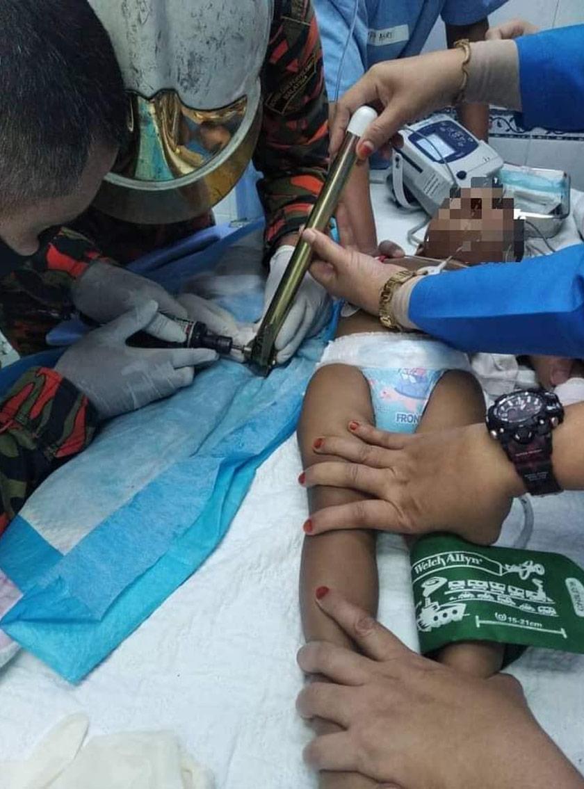Kanak-kanak terbabit terpaksa menahan kesakitan selepas ibu jarinya tersepit pada kaki meja di rumahnya hari ini. - Foto JBPM