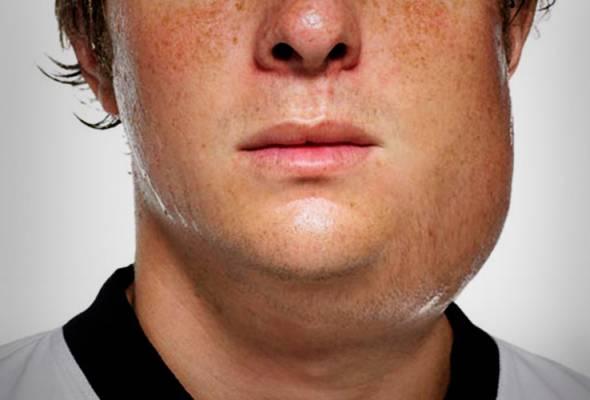 mumps - photo #7