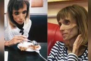 Digelar mayat hidup, wanita anorexia disaran doktor berlakon filem seram