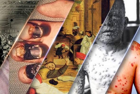 Trivia: Ini 5 wabak paling dahsyat dalam sejarah manusia